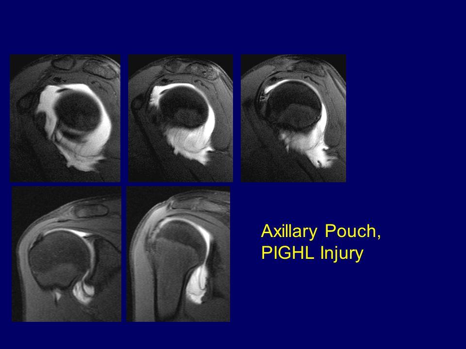 Axillary Pouch, PIGHL Injury