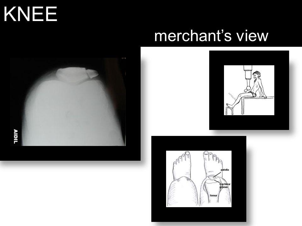 KNEE merchant's view
