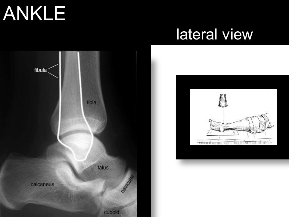 ANKLE lateral view