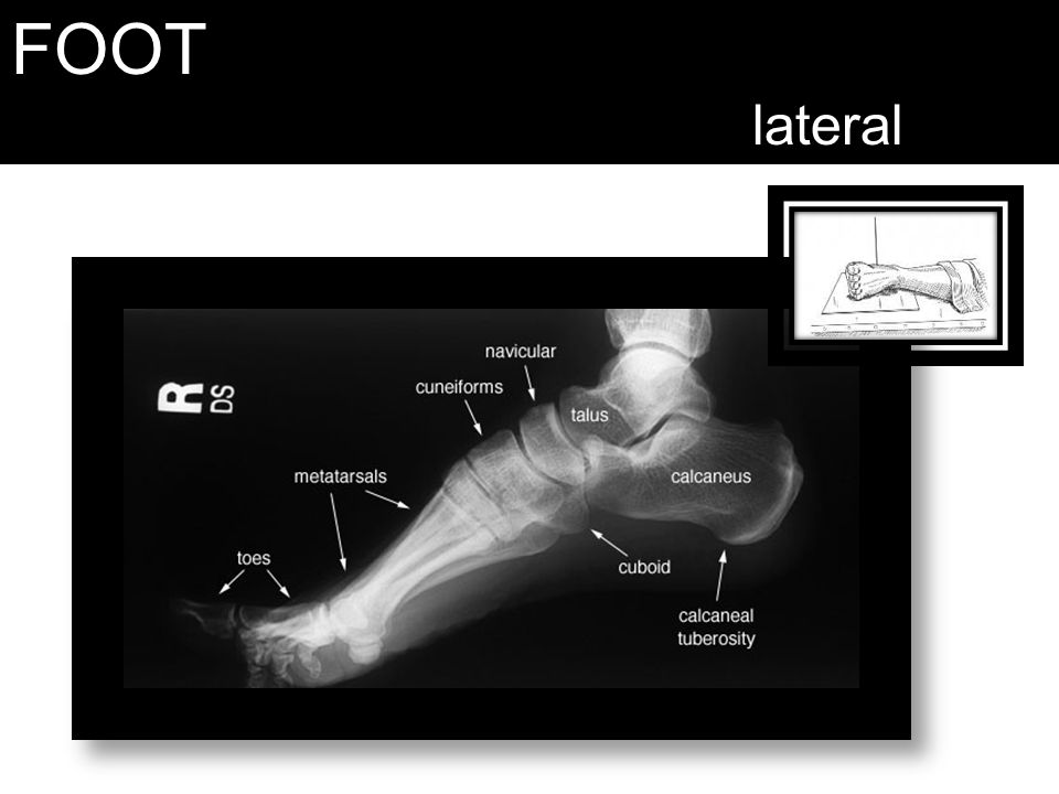 FOOT lateral