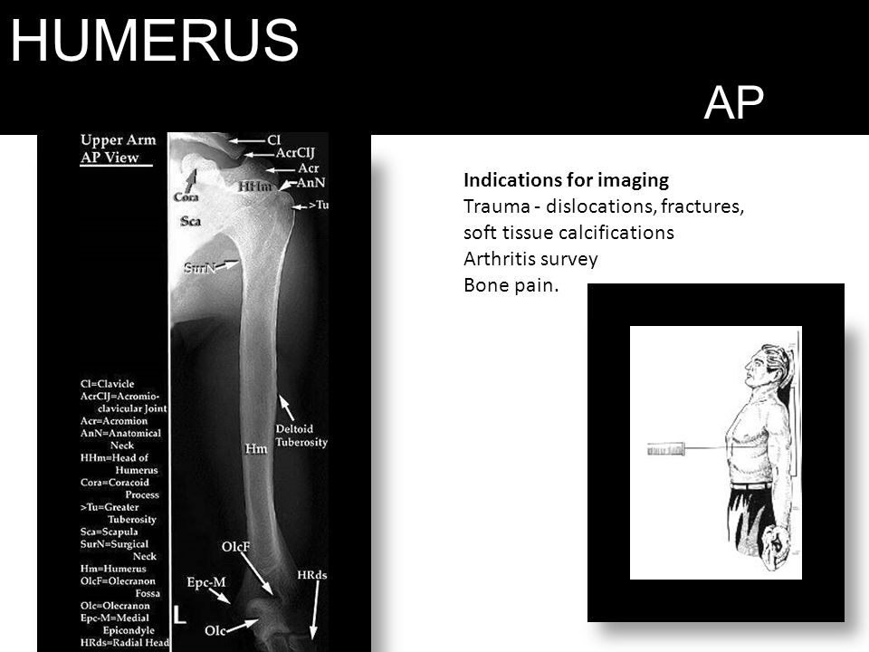 HUMERUS AP Indications for imaging Trauma - dislocations, fractures, soft tissue calcifications Arthritis survey Bone pain.