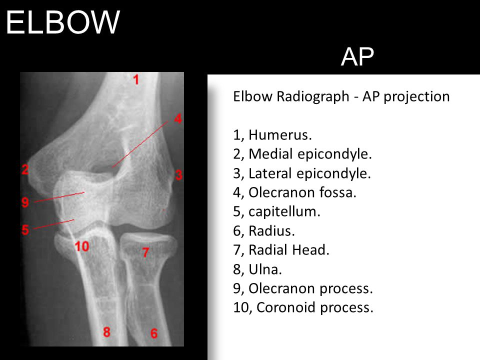 ELBOW AP Elbow Radiograph - AP projection 1, Humerus. 2, Medial epicondyle. 3, Lateral epicondyle. 4, Olecranon fossa. 5, capitellum. 6, Radius. 7, Ra