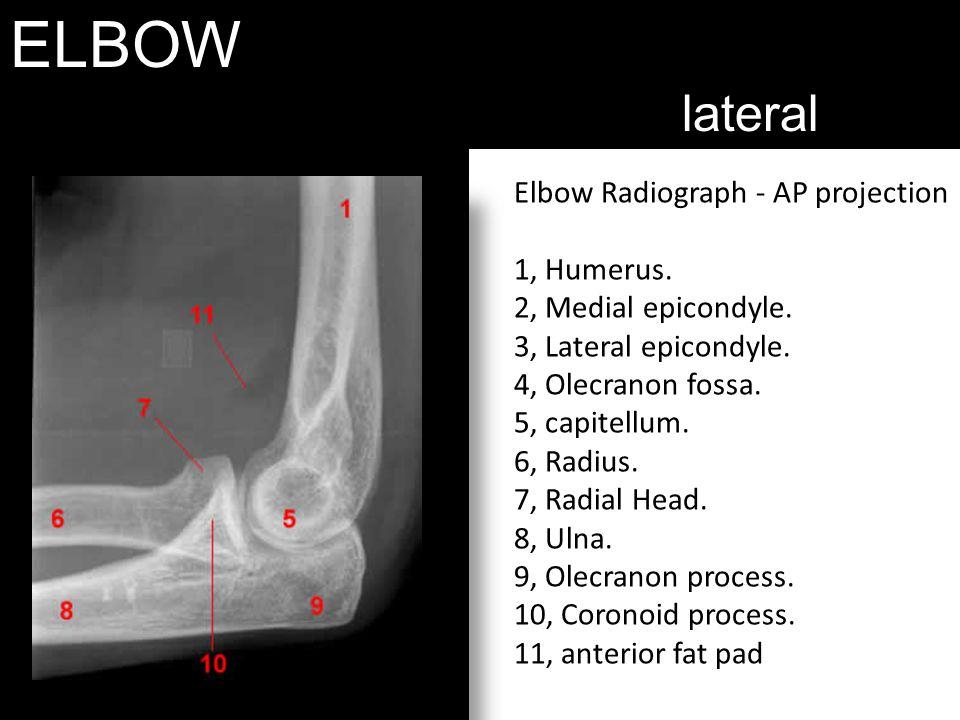 ELBOW lateral Elbow Radiograph - AP projection 1, Humerus. 2, Medial epicondyle. 3, Lateral epicondyle. 4, Olecranon fossa. 5, capitellum. 6, Radius.