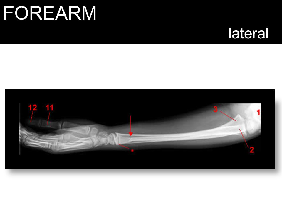 FOREARM lateral