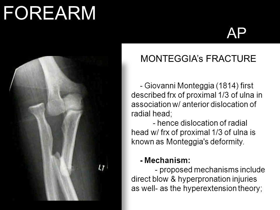 FOREARM AP MONTEGGIA's FRACTURE - Giovanni Monteggia (1814) first described frx of proximal 1/3 of ulna in association w/ anterior dislocation of radi