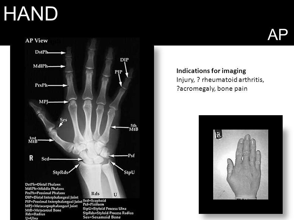 HAND AP Indications for imaging Injury, ? rheumatoid arthritis, ?acromegaly, bone pain