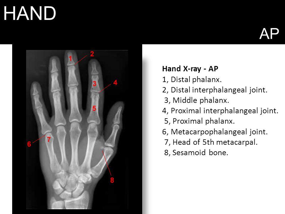 HAND AP Hand X-ray - AP 1, Distal phalanx. 2, Distal interphalangeal joint. 3, Middle phalanx. 4, Proximal interphalangeal joint. 5, Proximal phalanx.