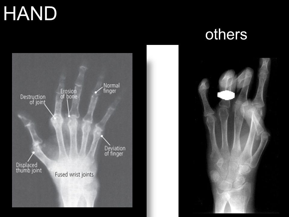HAND others