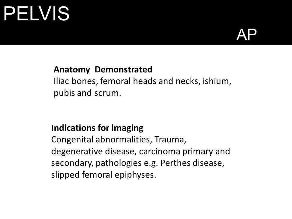 PELVIS AP Indications for imaging Congenital abnormalities, Trauma, degenerative disease, carcinoma primary and secondary, pathologies e.g. Perthes di