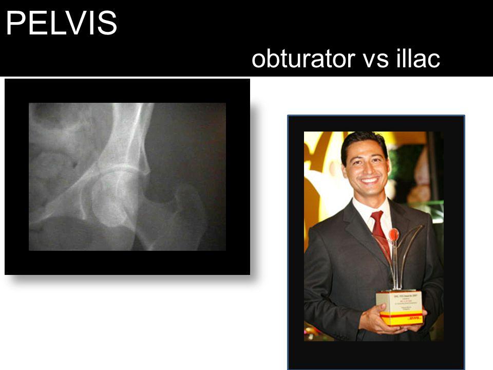 PELVIS obturator vs illac