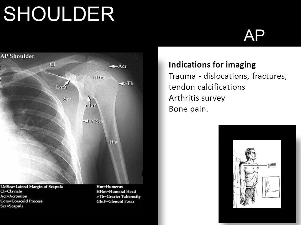 SHOULDER AP Indications for imaging Trauma - dislocations, fractures, tendon calcifications Arthritis survey Bone pain.