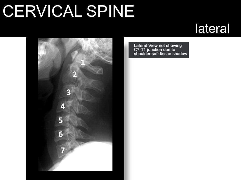 CERVICAL SPINE lateral