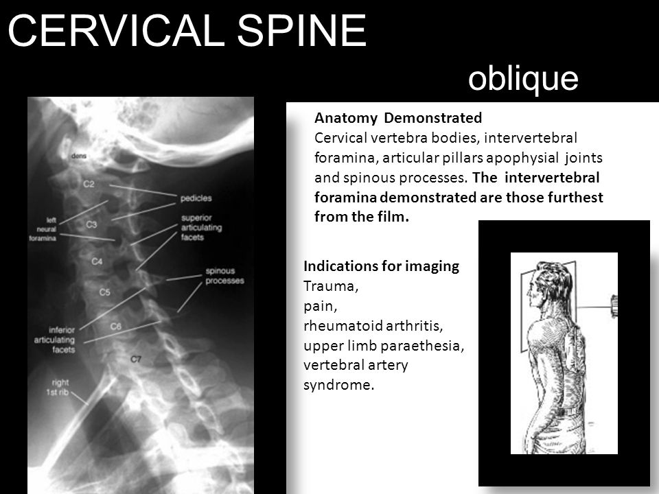CERVICAL SPINE oblique Anatomy Demonstrated Cervical vertebra bodies, intervertebral foramina, articular pillars apophysial joints and spinous process