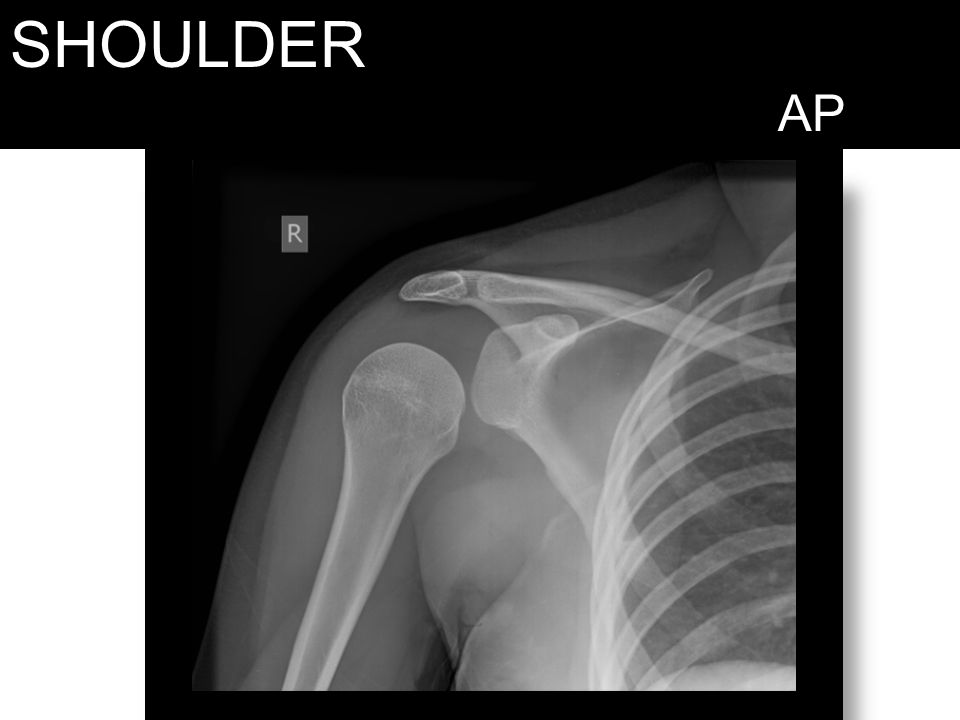 SHOULDER AP