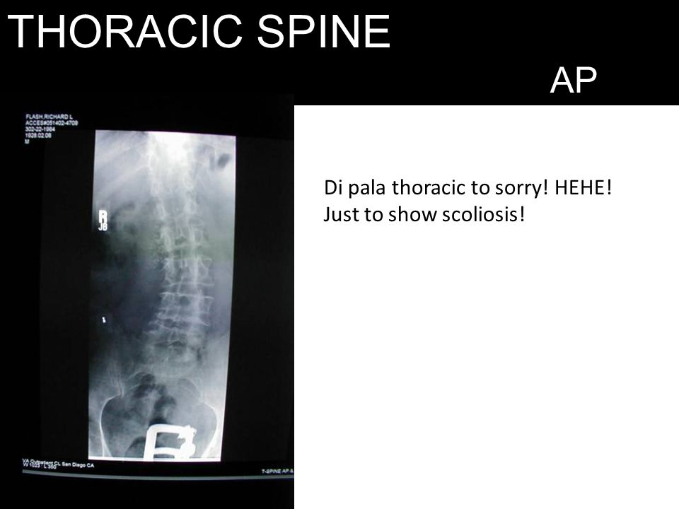 THORACIC SPINE AP Di pala thoracic to sorry! HEHE! Just to show scoliosis!