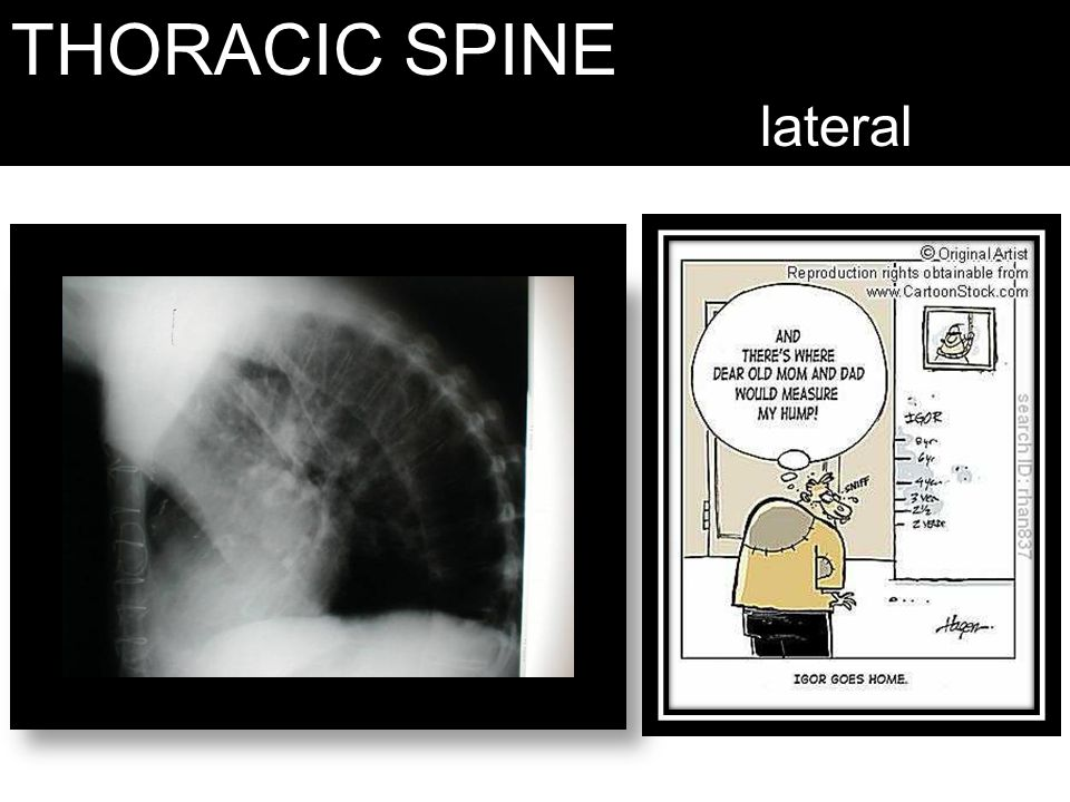 THORACIC SPINE lateral