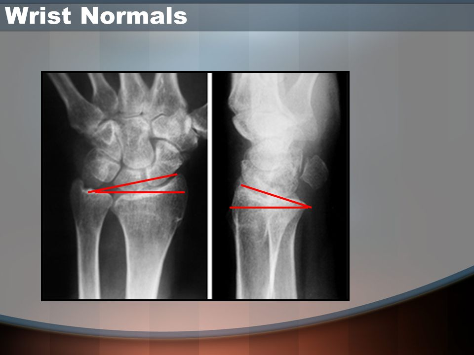 Wrist Normals