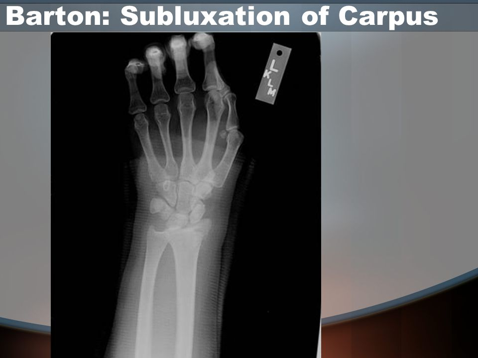 Barton: Subluxation of Carpus