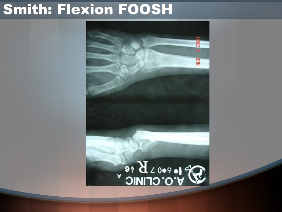Smith: Flexion FOOSH