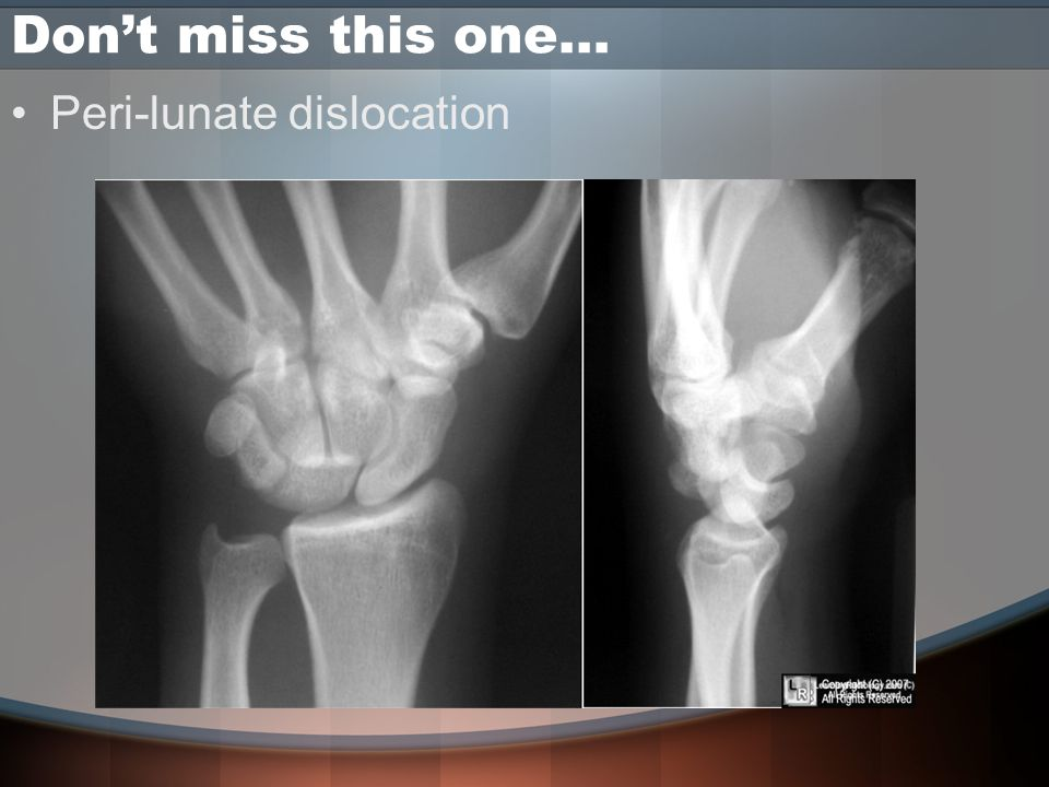 Don't miss this one… Peri-lunate dislocation