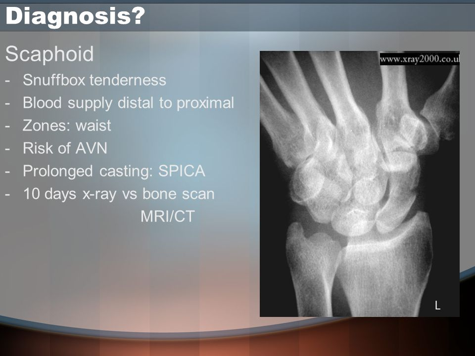 Diagnosis? Scaphoid -Snuffbox tenderness -Blood supply distal to proximal -Zones: waist -Risk of AVN -Prolonged casting: SPICA -10 days x-ray vs bone