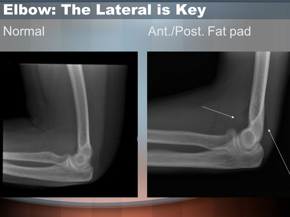Elbow: The Lateral is Key NormalAnt./Post. Fat pad