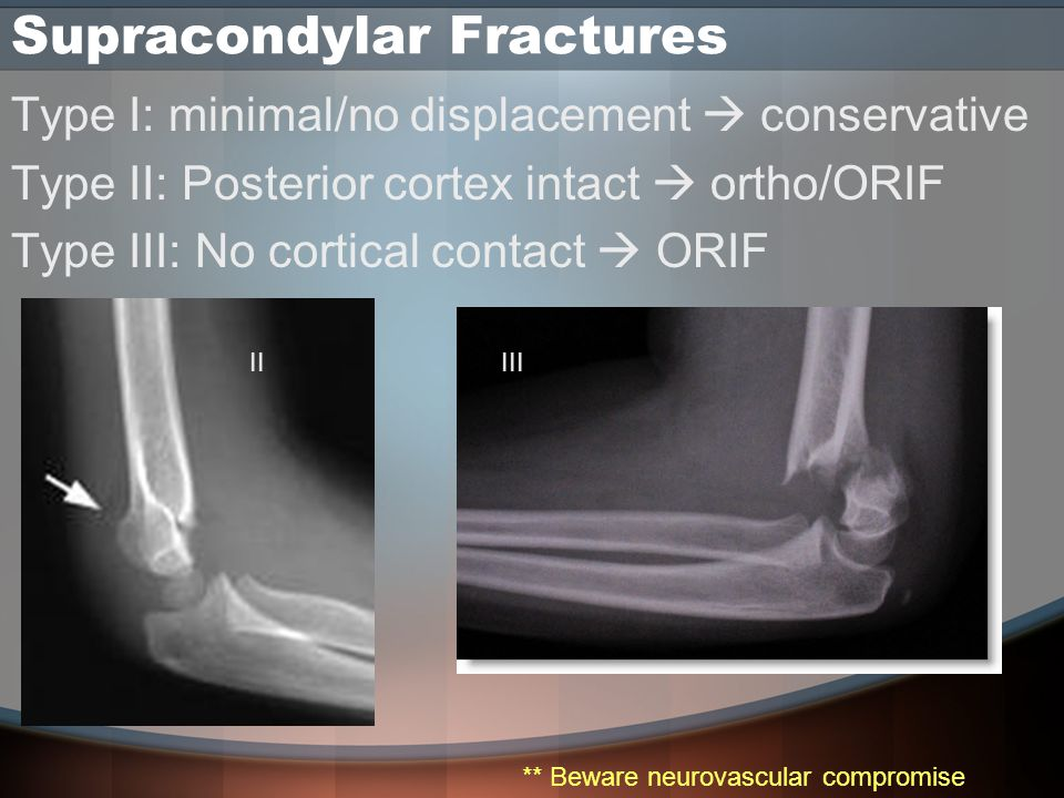 Supracondylar Fractures Type I: minimal/no displacement  conservative Type II: Posterior cortex intact  ortho/ORIF Type III: No cortical contact  ORIF IIIII ** Beware neurovascular compromise