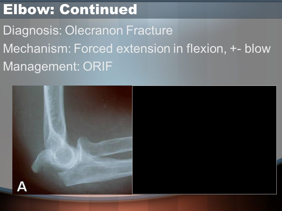 Elbow: Continued Diagnosis: Olecranon Fracture Mechanism: Forced extension in flexion, +- blow Management: ORIF
