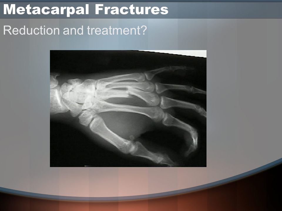 Metacarpal Fractures Reduction and treatment