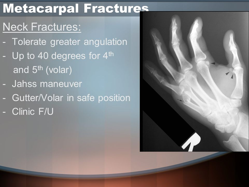 Metacarpal Fractures Neck Fractures: -Tolerate greater angulation -Up to 40 degrees for 4 th and 5 th (volar) -Jahss maneuver -Gutter/Volar in safe position -Clinic F/U