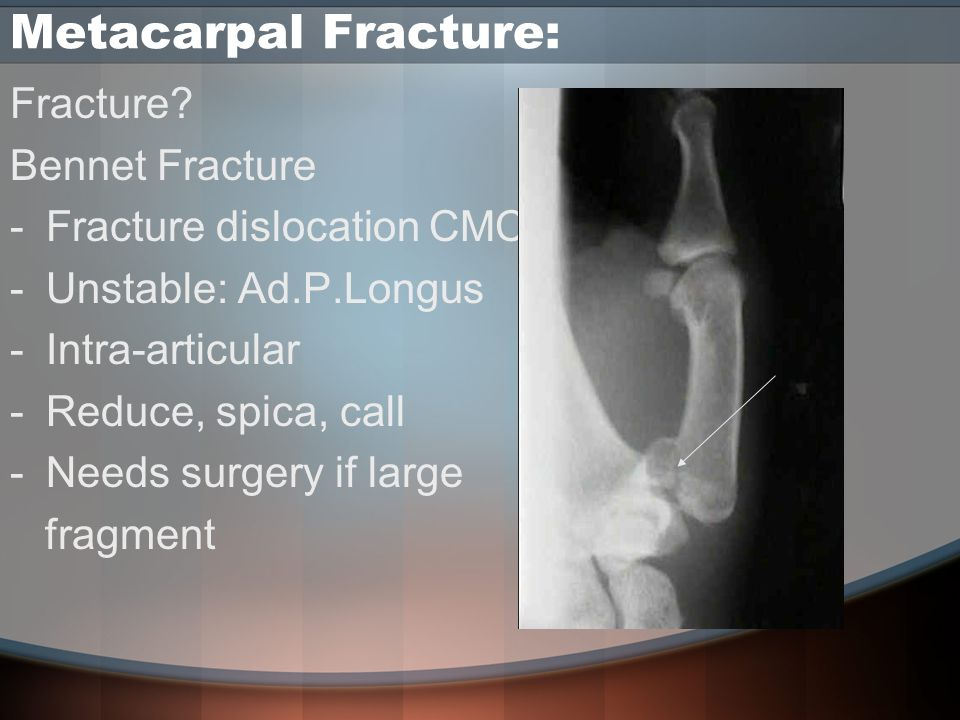 Metacarpal Fracture: Fracture? Bennet Fracture -Fracture dislocation CMC -Unstable: Ad.P.Longus -Intra-articular -Reduce, spica, call -Needs surgery i
