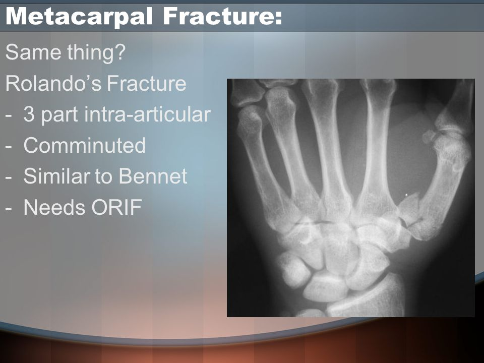 Metacarpal Fracture: Same thing.