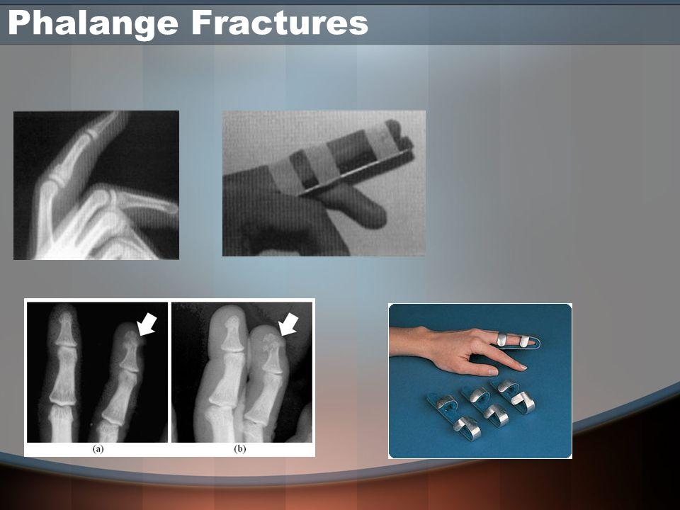 Phalange Fractures