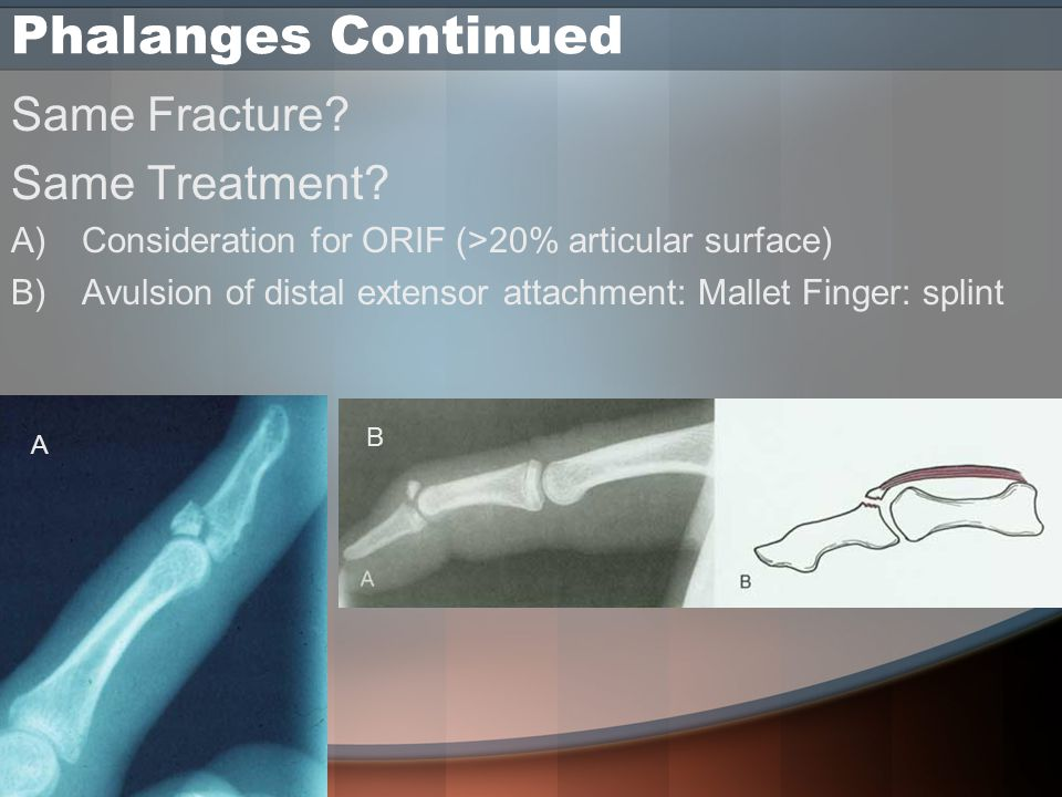 Phalanges Continued Same Fracture. Same Treatment.