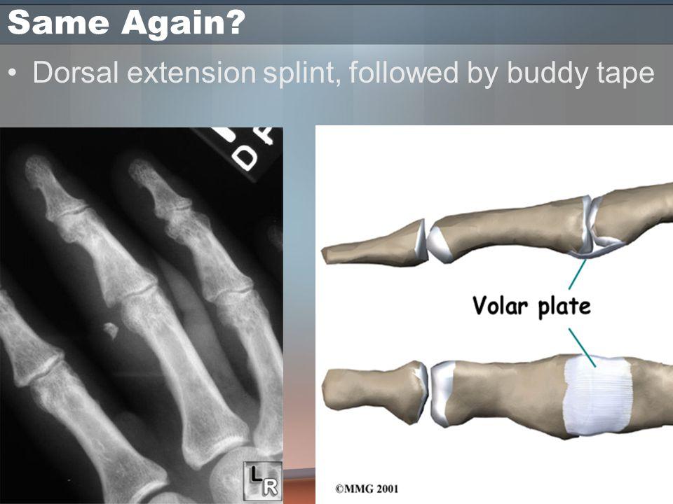 Same Again Dorsal extension splint, followed by buddy tape