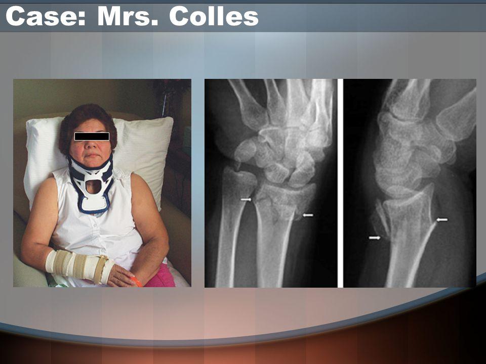 Case: Mrs. Colles