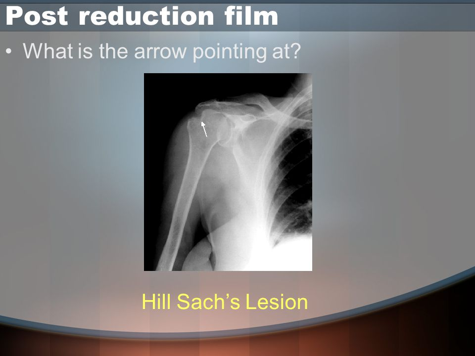 Post reduction film What is the arrow pointing at Hill Sach's Lesion