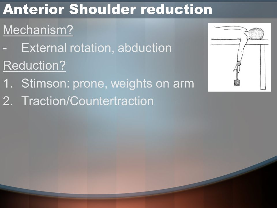 Anterior Shoulder reduction Mechanism. -External rotation, abduction Reduction.