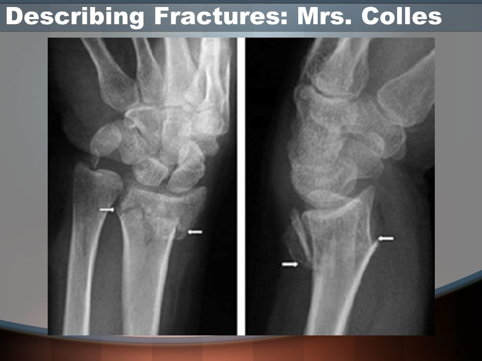 Describing Fractures: Mrs. Colles