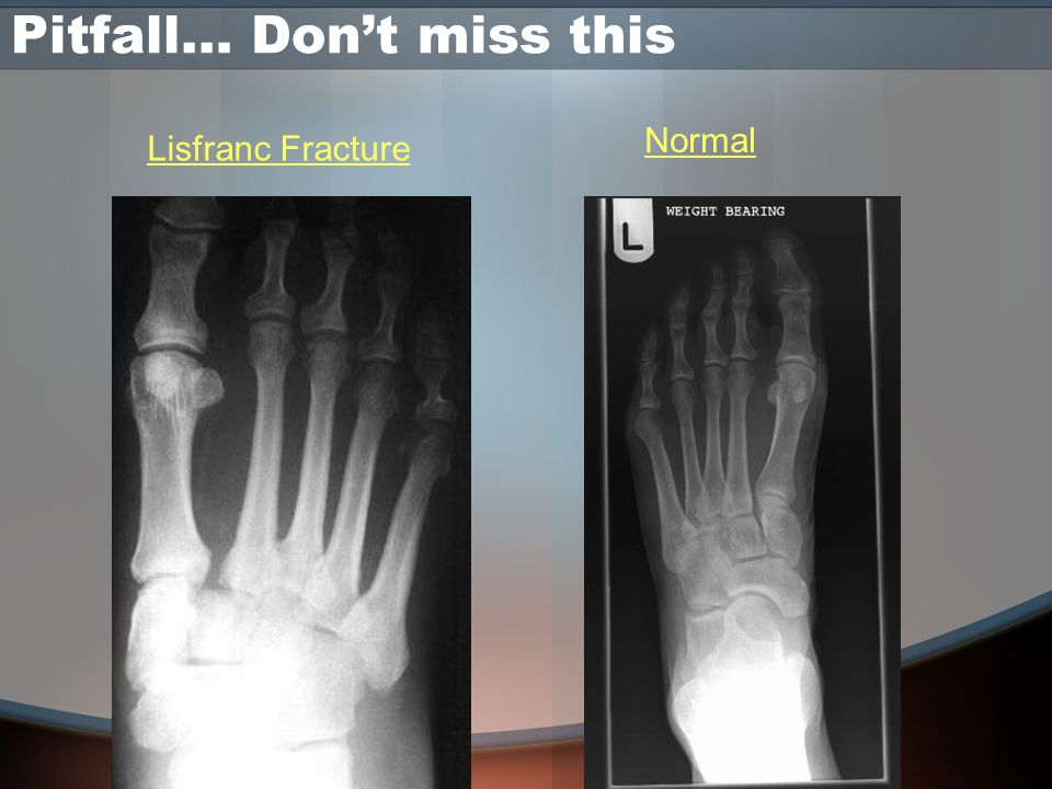 Pitfall… Don't miss this Lisfranc Fracture Normal