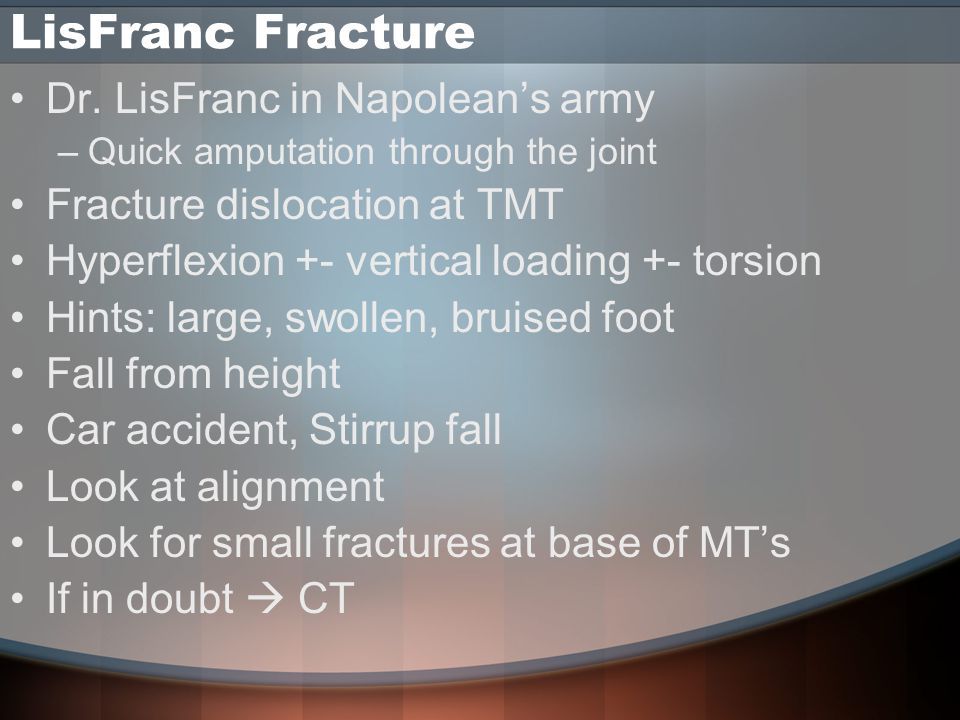LisFranc Fracture Dr. LisFranc in Napolean's army –Quick amputation through the joint Fracture dislocation at TMT Hyperflexion +- vertical loading +-