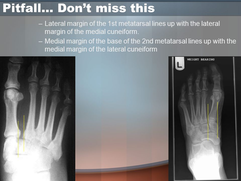 Pitfall… Don't miss this –Lateral margin of the 1st metatarsal lines up with the lateral margin of the medial cuneiform.