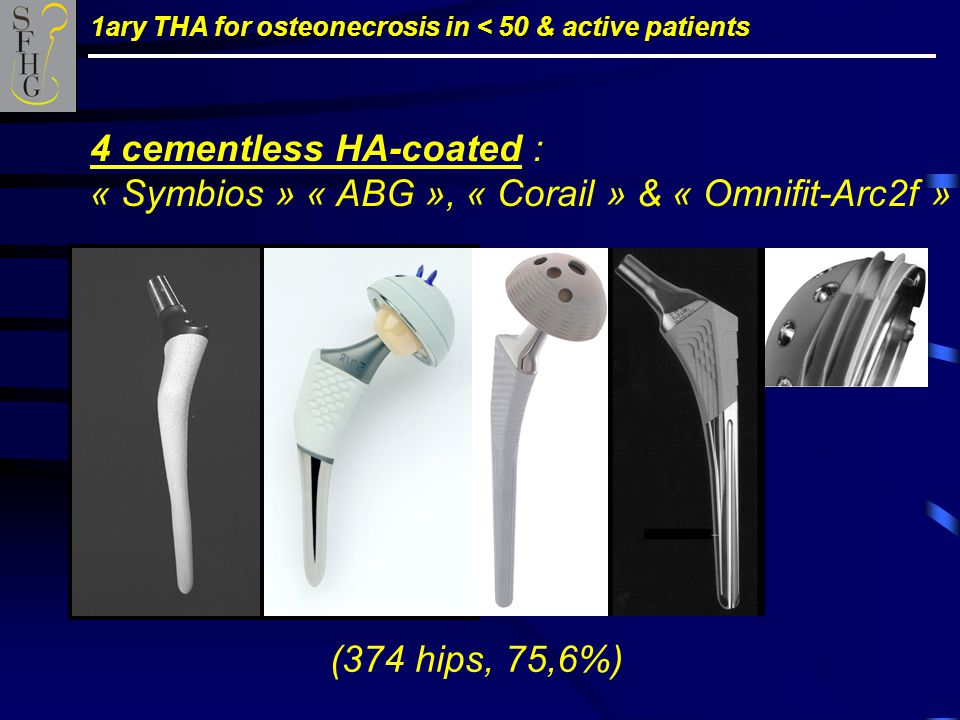 1ary THA for osteonecrosis in < 50 & active patients 4 cementless HA-coated : « Symbios » « ABG », « Corail » & « Omnifit-Arc2f » (374 hips, 75,6%)