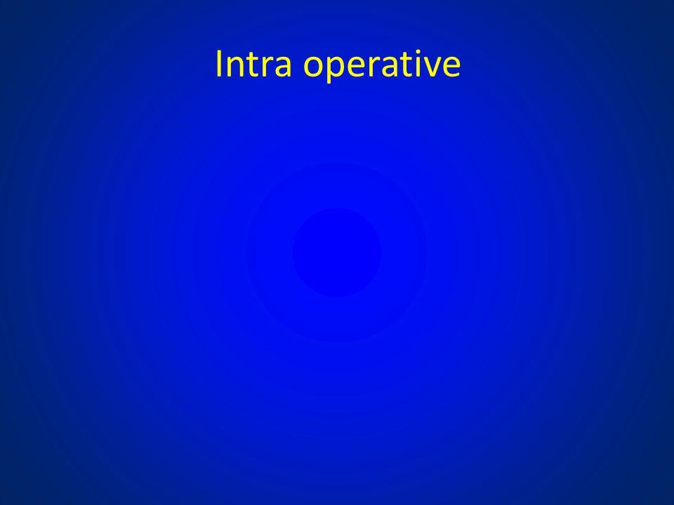 Intra operative