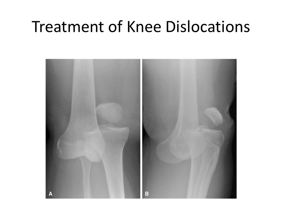 Treatment of Knee Dislocations