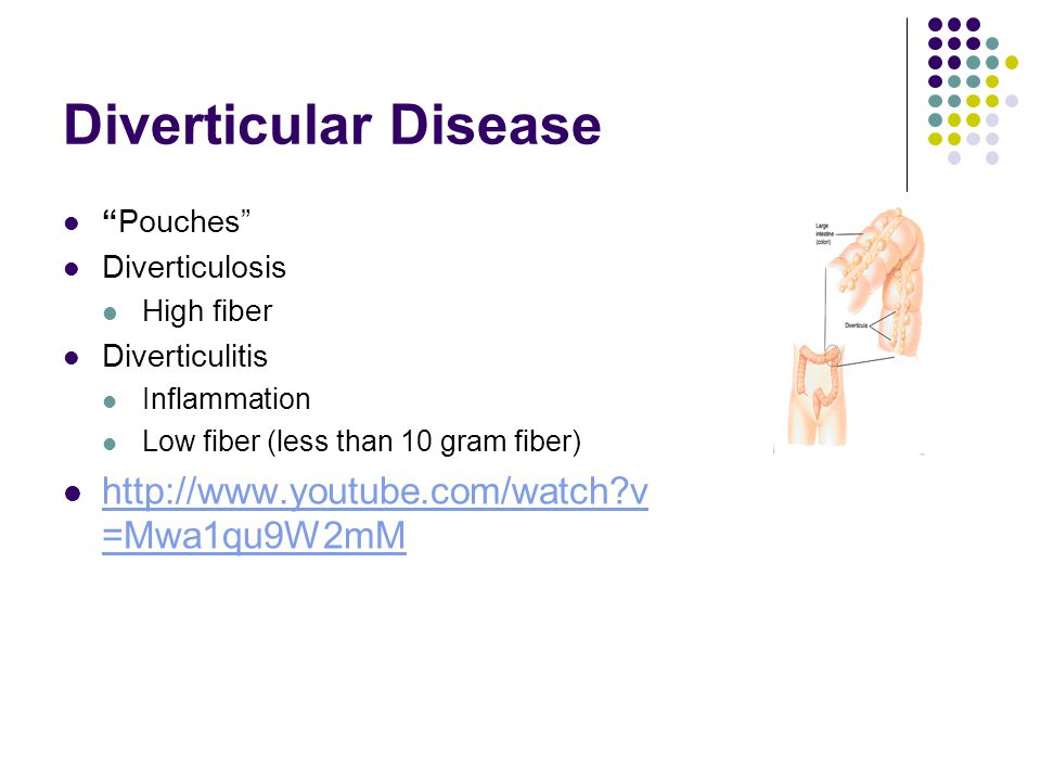 Diverticular Disease Pouches Diverticulosis High fiber Diverticulitis Inflammation Low fiber (less than 10 gram fiber) http://www.youtube.com/watch v =Mwa1qu9W2mM http://www.youtube.com/watch v =Mwa1qu9W2mM