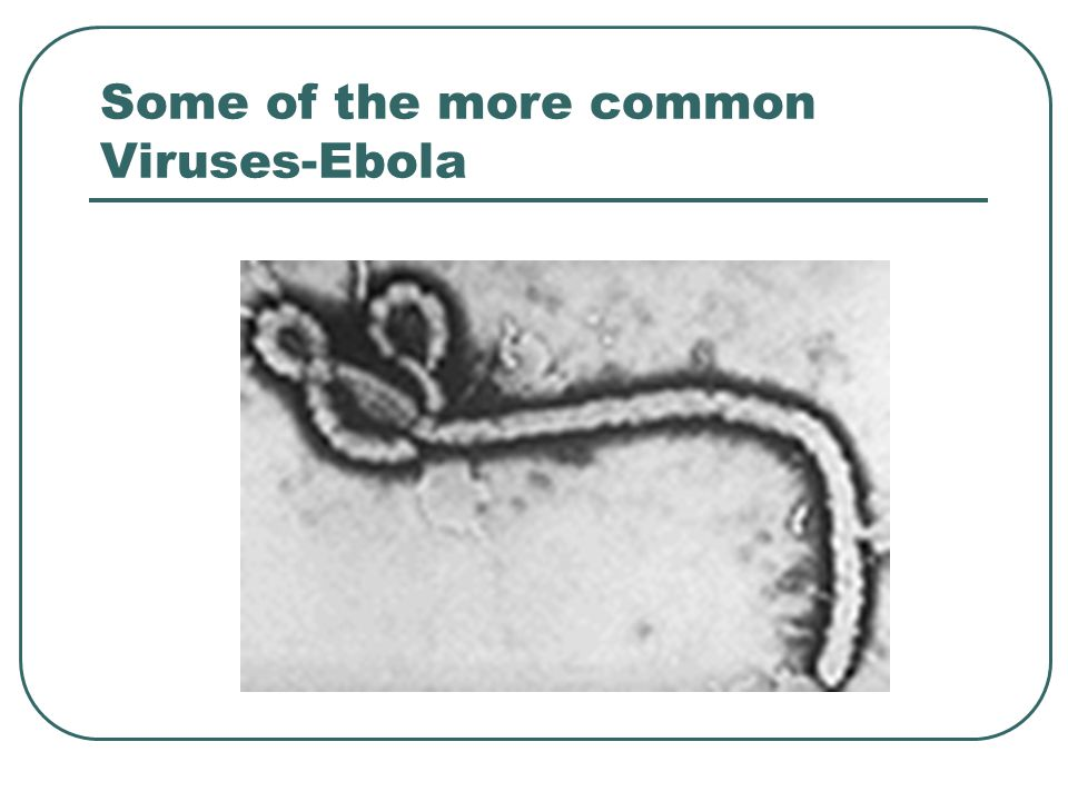 Some of the more common Viruses-Ebola