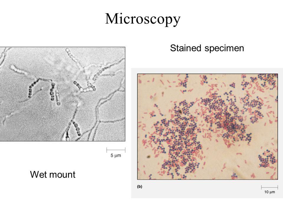 Microscopy Wet mount Stained specimen