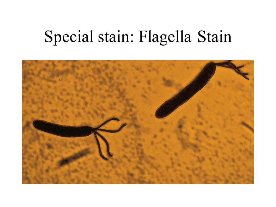 Special stain: Flagella Stain