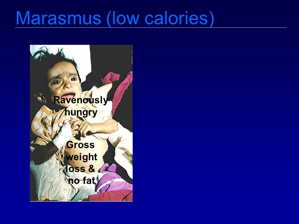 Marasmus (low calories) Ravenously hungry Gross weight loss & no fat